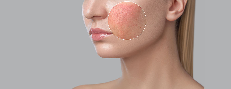 Vitamin D & Atopic Dermatitis